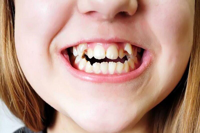 Những điều cần biết khi niềng răng Invisalign cho trẻ