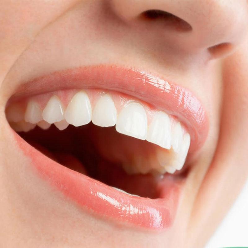 Những trường hợp không nên bọc răng sứ thẩm mỹ