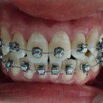 Niềng răng có khiến răng yếu đi không?