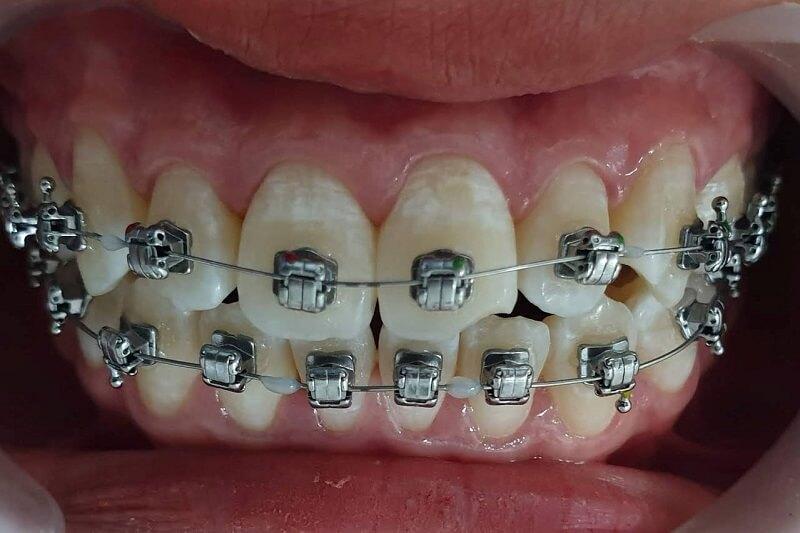 Niềng răng có làm răng yếu đi không?