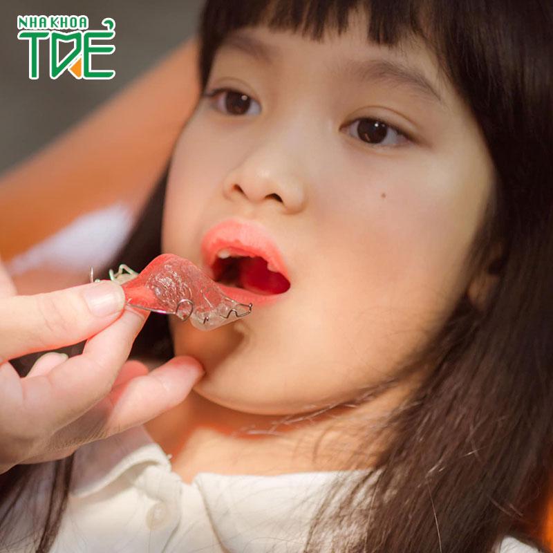 Niềng răng tháo lắp cho trẻ em đạt hiệu quả cao