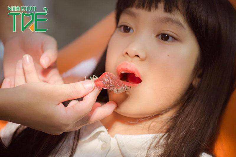 Niềng răng tháo lắp cho trẻ em giúp nắn chỉnh cấu trúc hàm trở nên cân đối, hài hòa