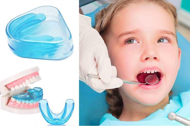 Khay niềng hướng dẫn mọc răng phù hợp với trẻ ở độ tuổi thay răng sữa