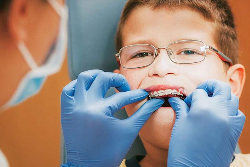 Niềng răng tháo lắp cho trẻ khắc phục được mọi khuyết điểm của răng