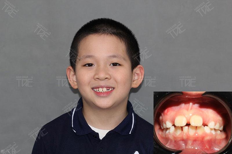 Kết quả niềng răng tháo lắp cho trẻ tại Nha khoa Trẻ