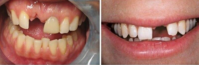 Phương pháp cầu răng sứ là gì?