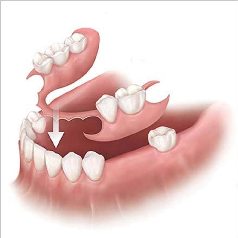 Răng giả tháo lắp là gì? Có ưu nhược điểm như thế nào?