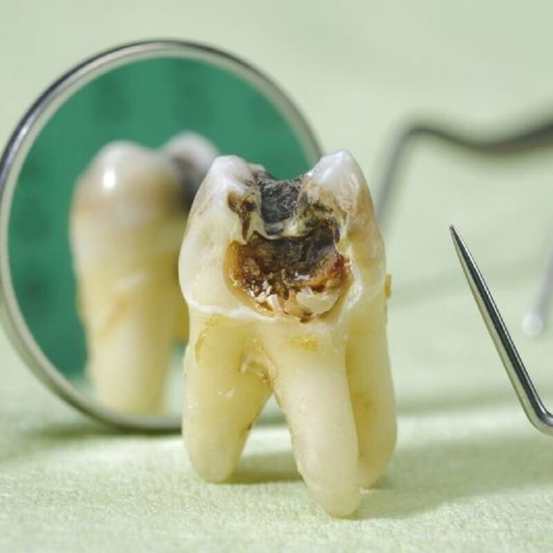 Răng khôn bị sâu nên hay không nên nhổ bỏ?