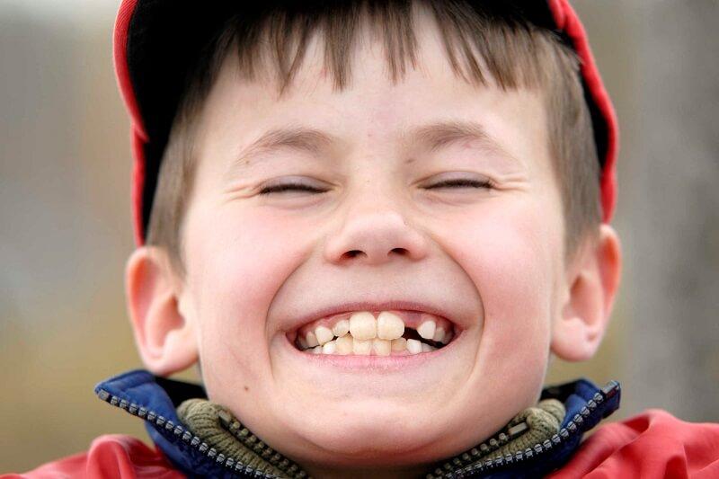 Răng mọc lệch ở trẻ - Nguyên nhân và cách khắc phục