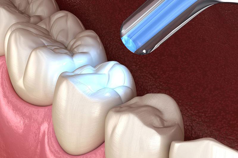 Răng thưa phải làm sao? Cách chữa răng thưa hiệu quả nhất