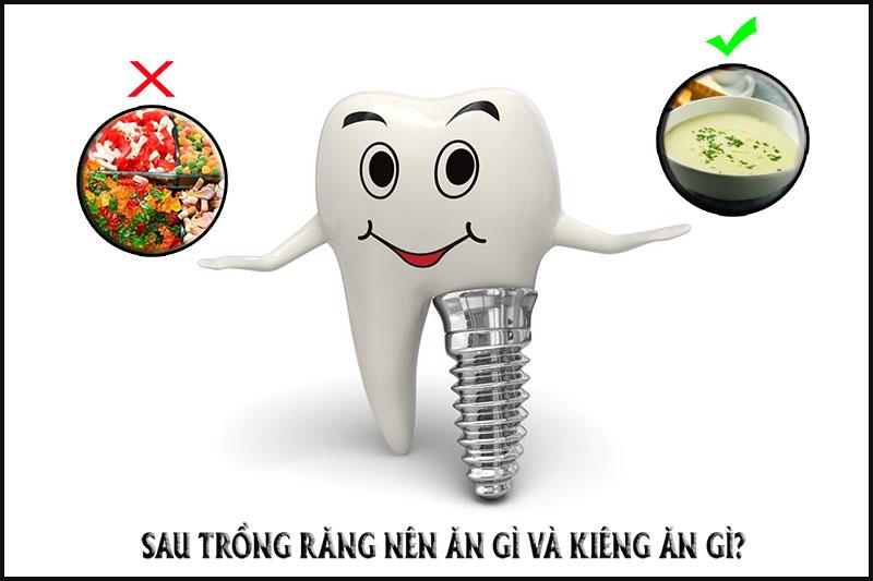 Sau trồng răng Implant nên ăn gì và kiêng ăn gì?