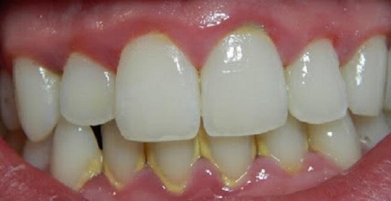 Sự hình thành cao răng và mảng bám như thế nào?