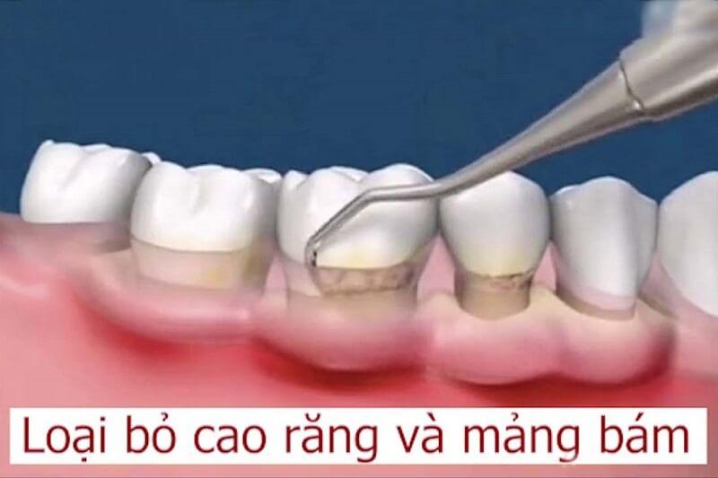 Làm sạch mảng bám cao răng để loại bỏ vi khuẩn
