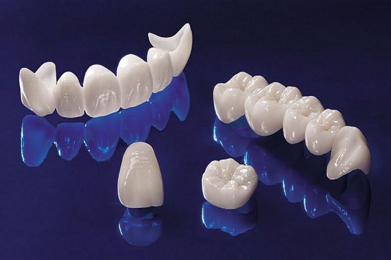 Tại sao sau khi bọc răng sứ bị ê buốt, đau nhức?