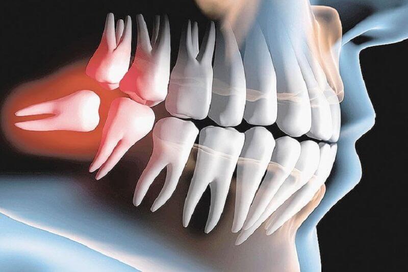 Thời điểm tuyệt đối không được nhổ răng khôn?