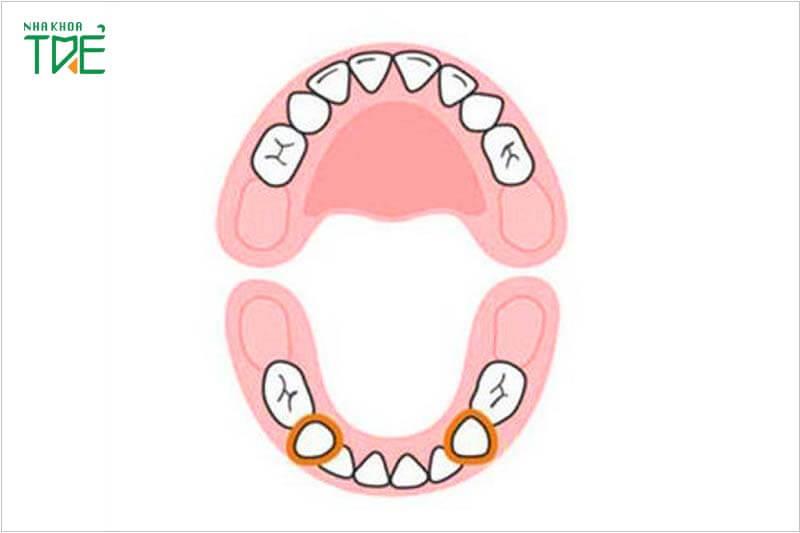 Thứ tự mọc răng sữa ở trẻ mẹ nên biết để chăm sóc tốt nhất