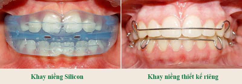 Trẻ em nên niềng răng tháo lắp trong giai đoạn 7-12 tuổi