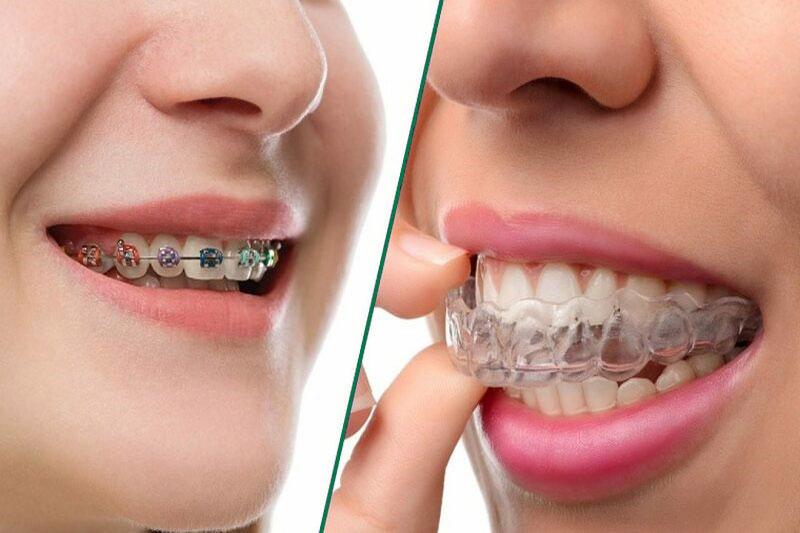 Trẻ em nên niềng răng khi nào là hợp lý nhất?