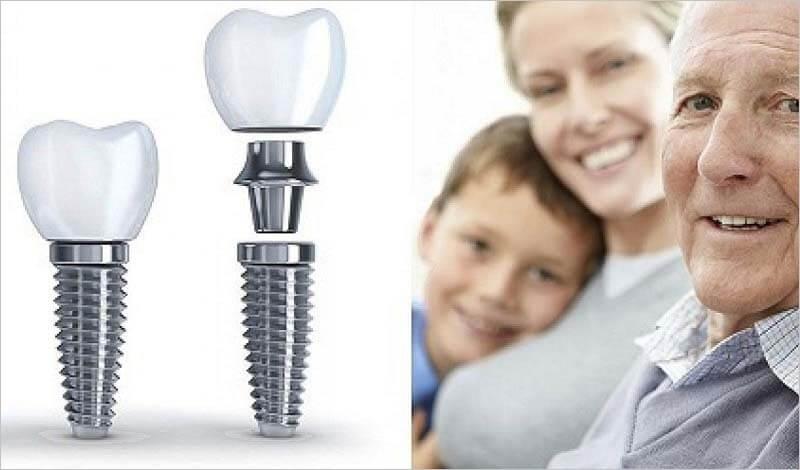 Trồng răng cho người lớn tuổi cách nào tốt nhất