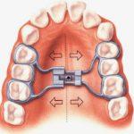 Trường hợp nào phải nong hàm khi niềng răng?