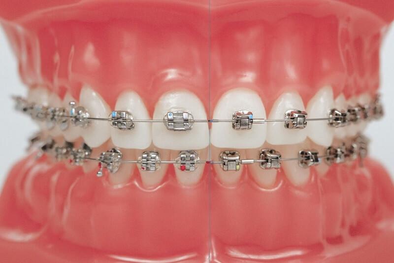 Ưu điểm nổi bật của niềng răng mắc cài kim loại tự buộc