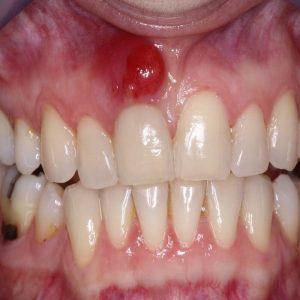 Viêm chân răng: Nguyên nhân và cách điều trị dứt điểm