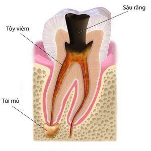Viêm tủy răng có nguy hiểm không? Phải điều trị như thế nào?