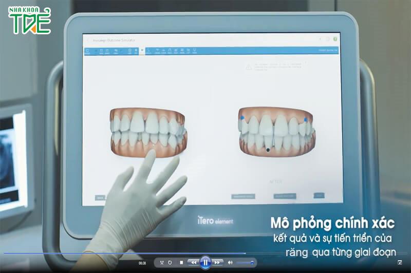 Mô phỏng quá trình điều trị bằng phần mềm Clincheck