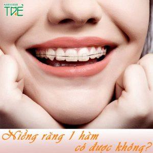 Có thể niềng răng 1 hàm được không? Giá bao nhiêu tiền?