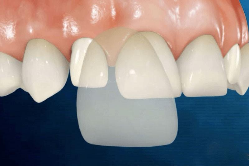 Bọc răng sứ 1 chiếc được không? Giá 1 chiếc bao nhiêu tiền?