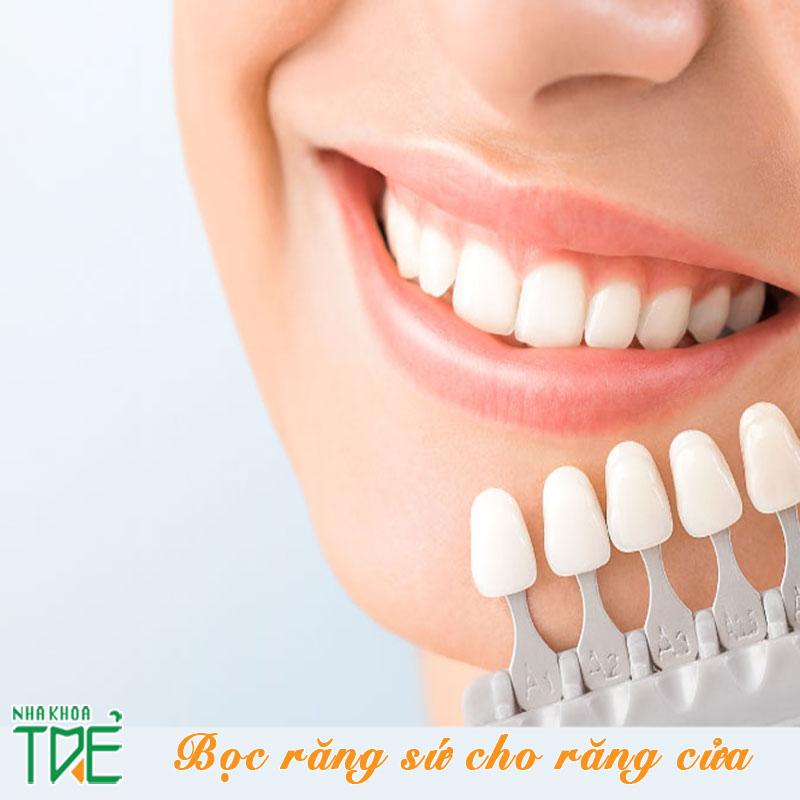 Bọc răng sứ cho răng cửa khắc phục hàm răng kém duyên