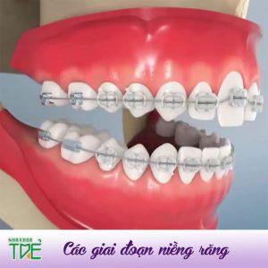 Các giai đoạn niềng răng cụ thể trong quá trình chỉnh nha