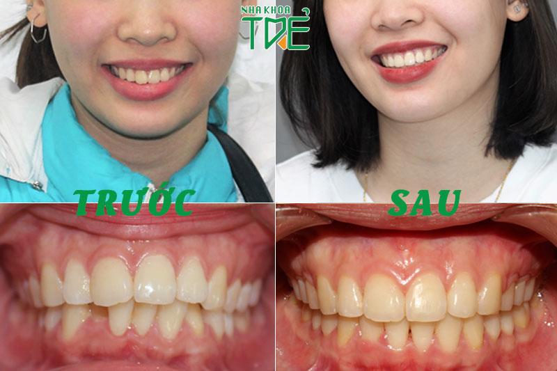 Kết quả sau niềng răng lệch lạc - Nha khoa Trẻ
