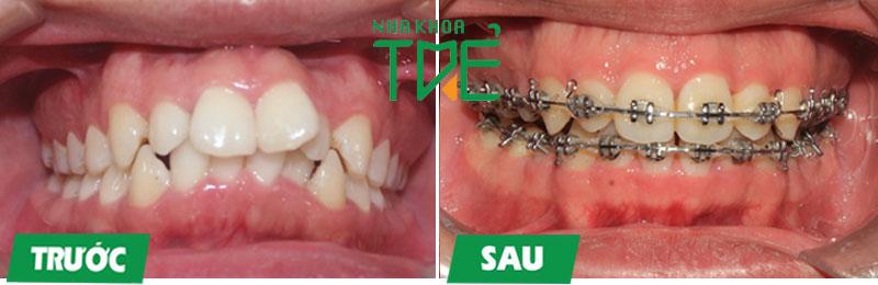 Hình ảnh trước và sau niềng răng 15 tháng tại Nha khoa Trẻ