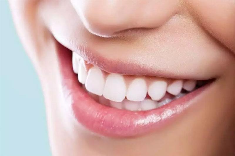 Niềng răng cho hàm răng đều đẹp, chuẩn khớp cắn
