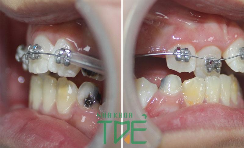 Chỉnh nha trẻ em từ trước khi mọc đầy đủ các răng vĩnh viễn