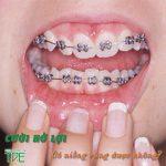 Cười hở lợi có niềng răng được không? Niềng răng có hết hở lợi không?