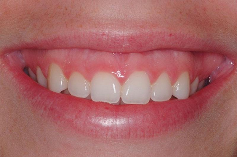 Răng quá ngắn gây ra hiện tượng cười hở lợi
