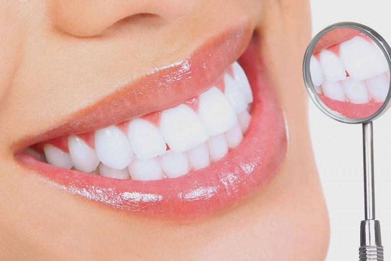 Dán veneer là gì? Báo giá dán răng sứ veneer