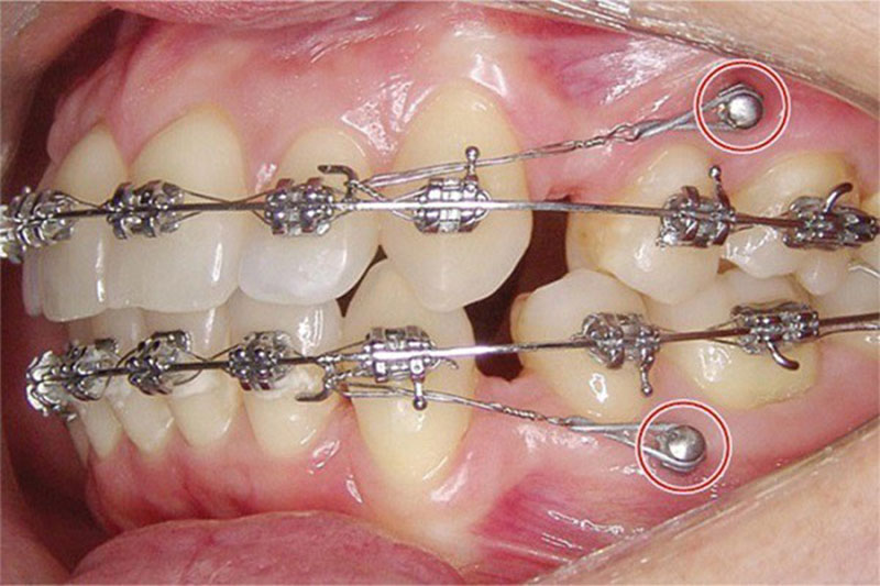 Đánh lún răng trong niềng răng chỉnh nha