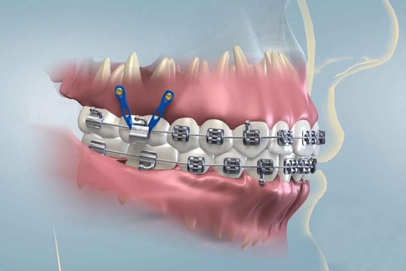 Đánh lún răng tạo lực kéo hỗ trợ điều chỉnh cung hàm