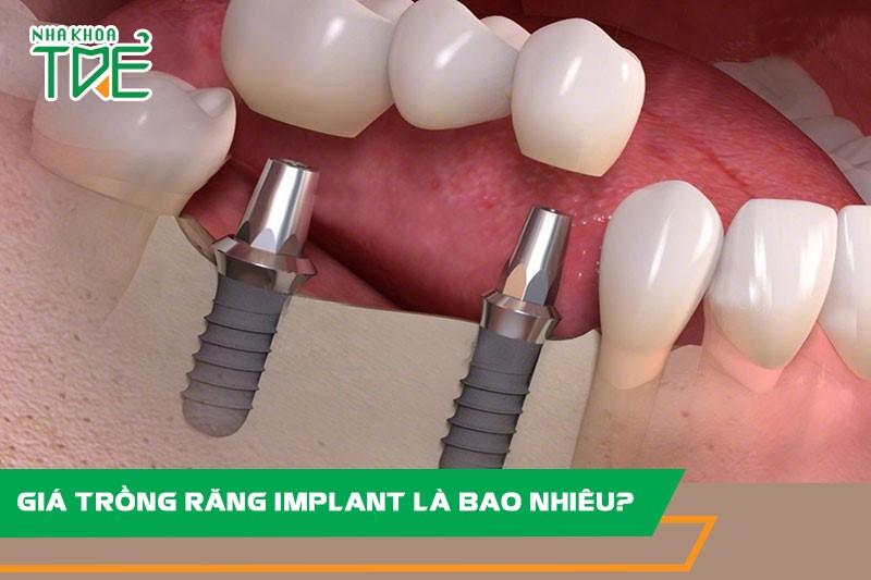 Giá trồng răng Implant là bao nhiêu? Bảng giá trồng răng Implant trọn gói