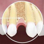 Mất răng lâu năm trồng lại được không? Nếu được thì bằng cách nào?