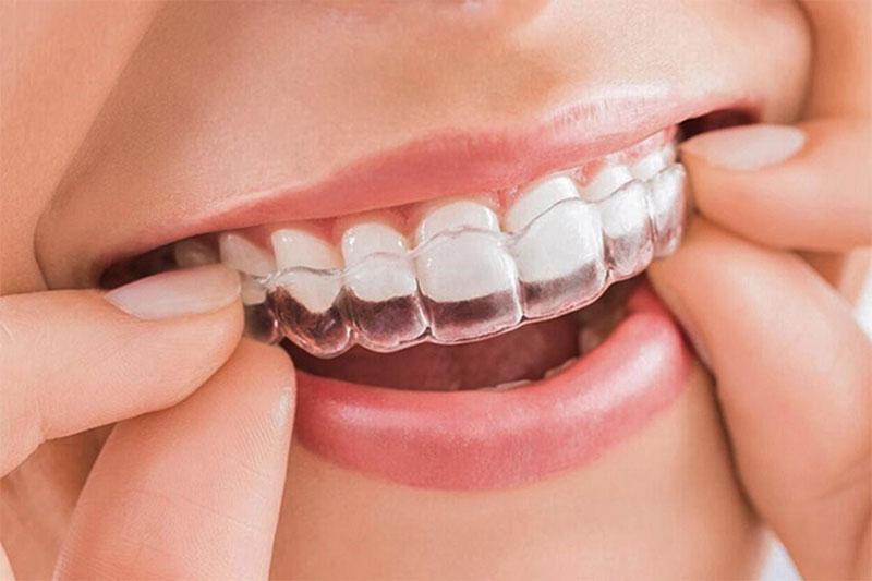 Nên niềng răng hay bọc răng sứ? So sánh chi tiết hai phương pháp