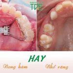 Nên nong hàm hay nhổ răng để niềng răng hiệu quả tối ưu