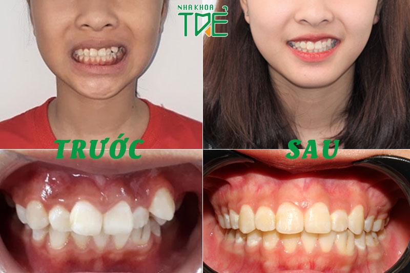 Trường hợp niềng răng sử dụng kỹ thuật nong hàm để nới rộng cung hàm