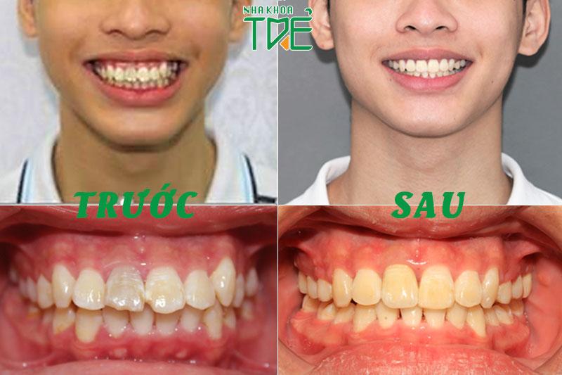 Hình ảnh trước và sau niềng răng tại Nha khoa Trẻ