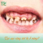 Nguyên nhân răng trẻ em bị vàng và cách làm trắng răng an toàn cho trẻ