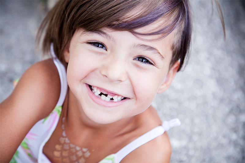 Răng vĩnh viên mọc lệch lạc do những vấn đề gặp phải ở răng sữa trước đó