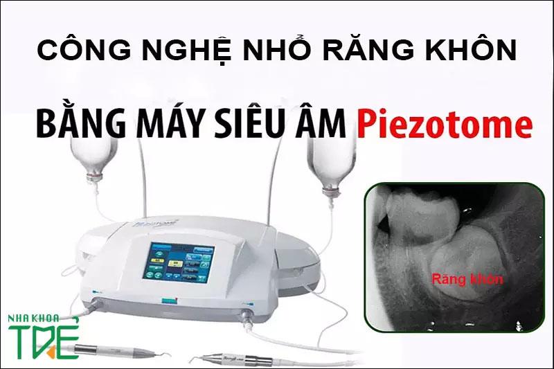 Công nghệ nhổ răng khôn siêu âm Piezotome hiện đại